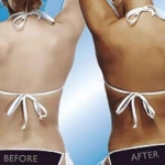 spray tan before and after photo